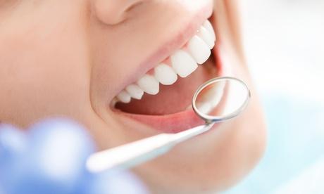 1, 2 o 4 empastes dentales con limpieza bucal completa desde 19,95 € en Salud Dental Canarias
