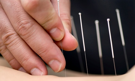 30-Minute Acupuncture Treatment with Optional 30-Minute Massage at Chinese Medical Centre