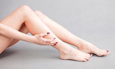 Leg or Face Spider Vein Treatment on Two or Four Areas at Ice Smooth Beauty