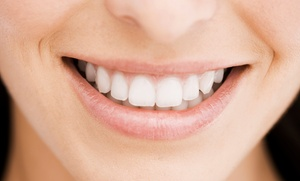 Ortodoncia con brackets metálicos por 299 € de cerámica por 359 € y de zafiro por 379 €
