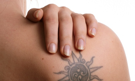 Two Laser Tattoo-Removal Treatments on a Small, Medium, or Large Area at SilkySkin Laser Centers (Up to 82% Off)