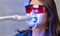 【最大40%OFF】口コミで広まった歯の美白専門店!歯医者さんが開発したセルフホワイトニングで白さを実感≪セルフホワイトニングLED10...