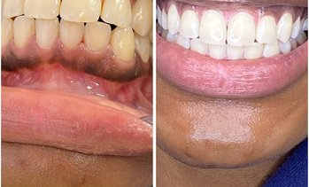 Up to 50% Off on Teeth Whitening - In-Office - Non-Branded at Charm'd Toothology