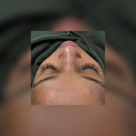 50% Off Eye Care