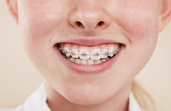 How Do Braces Work? Hero
