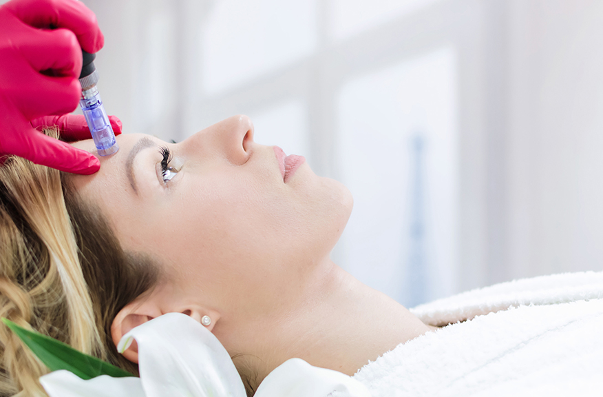 Microneedling portion of the Vampire Facial