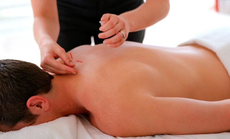 Trattamento agopuntura