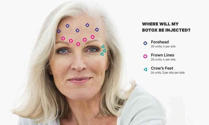 Botox Forehead & Face Guide: What to Know in Simple