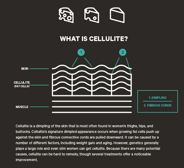 black cellulite infographic