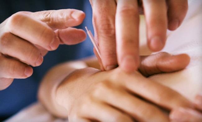 agopuntura mani