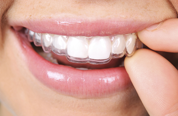 Kết quả hình ảnh cho Process braces treatment with Invisalign braces