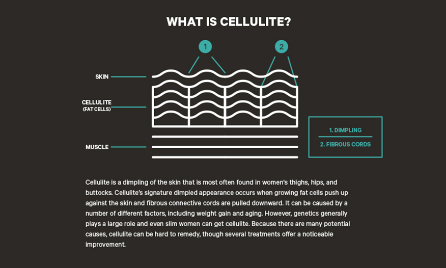 What is Cellulite and Can It be Treated?