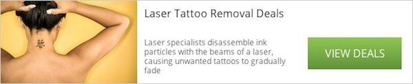 tattoo-removal-widget_600c122