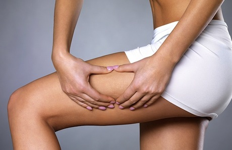 the cellulite treatment cheat sheet updated