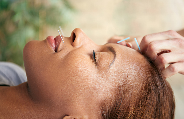 Does Acupuncture Work? What I Learned (and Loved) About the Age-Old Technique