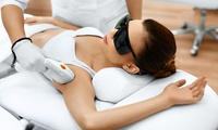 woman getting laser hair removal on face