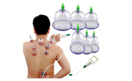Chinese Medical 6 cups Vacuum Body Pump Suction Cupping Therapy Set c0464386-3edb-4b6b-9aed-5ec9c812ab2f