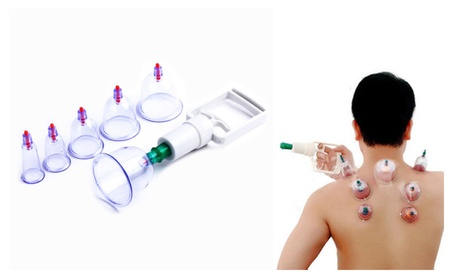 Cupping Therapy Device Set 6 Cups Chinese Medical Hijama Set 9d4041df-3a16-48c9-8b18-a0e7b67a7e67