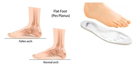 New Foam Orthotics For Flat Feet Fight Back Against Plantar Fasciitis