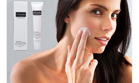 O'Chelli Herbal Acne Cream Anti Pimple Acne Scars Removal Treatment dd00ff2a-09fb-40f2-b16a-837bd51b8a30