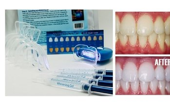 Home Teeth Whitening 3D System and Free Remineralization Gel