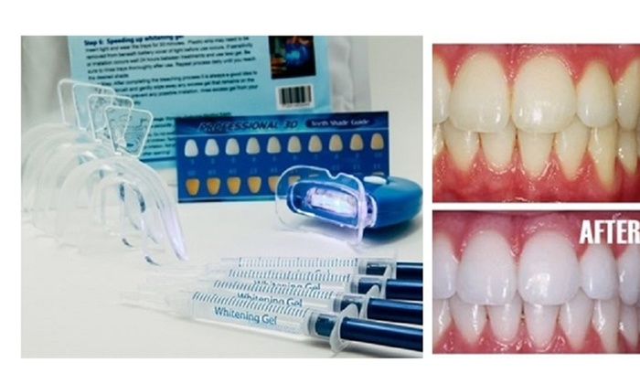 Up To 80 Off On Home Teeth Whitening 3d Syste Groupon Goods