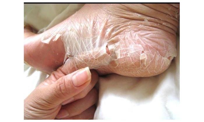 Skin Exfoliants Natural