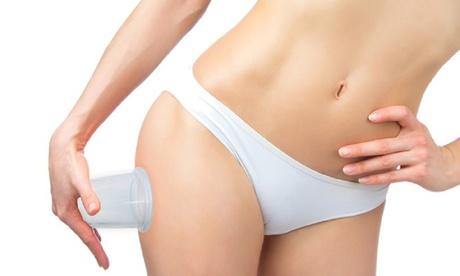 Cellulite Silicone Massage Cups (2- Pack) 07a80865-5687-4c9b-ae72-e772ea7e4344
