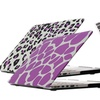 Bunta Multi-Pattern Macbook Hard-Case with a Silicone Keyboard Cover.