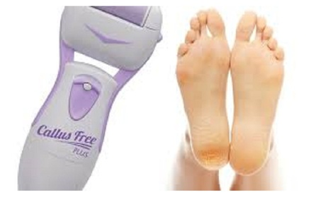Effective Micro Callus Remover For Skin Care 2481dc29-140b-475a-8674-ff87a18b05cd